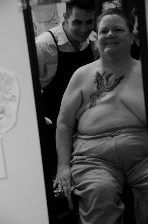 жить после удаленной груди
