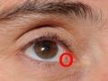 -глаза3-300x160
