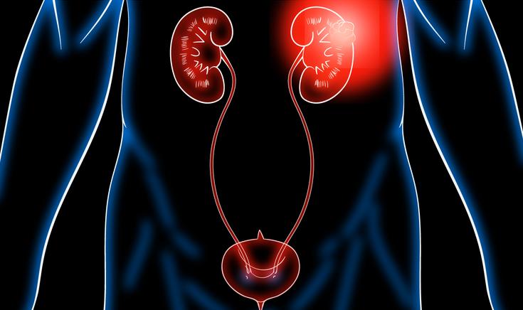 Опухоли мочеполовых путей