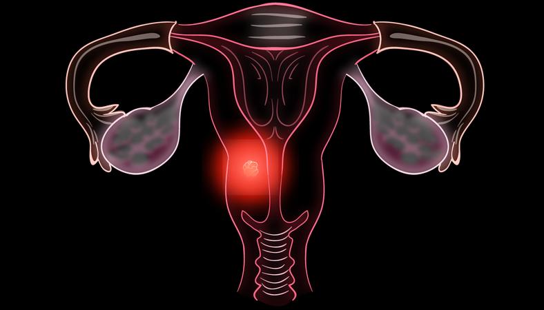 Опухоли половых органов