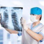 Плоскоклеточный рак легких