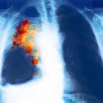 images Мелкоклеточный рак легких