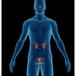 Опухоли мочевыводящей системы