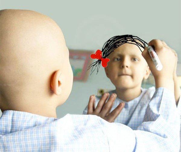 рак молочной железы у детей