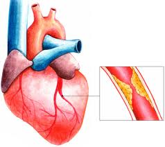 рак сердца, лечение рака сердца в Израиле