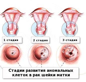 Бабушка лечение от простатита
