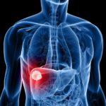 Лечение рака легких: последние исследования
