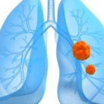 Карцинома легких
